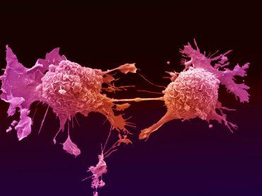 Израильские врачи добились большого прогресса в борьбе с раком кожи