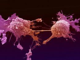 Израильские ученые убивают раковую опухоль синтетическими клетками