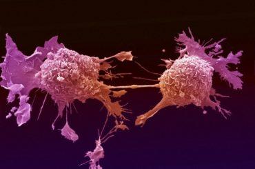 Ізраїльські вчені вбивають ракову пухлину синтетичними клітинами